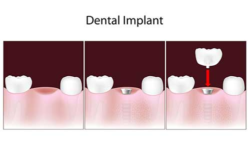 Implant Dentist near Forest Hills