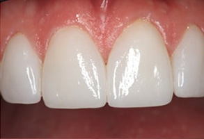Forest Hills Dental Images